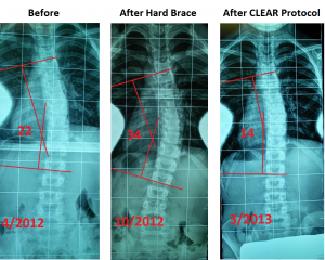 To understand what is occurring in the neck and with the hips, precision x-rays are necessary