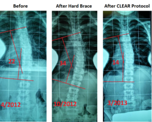 before, during, and after images using CLEAR's method for scoliosis treatment