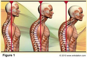 Forward Head Posture Denver Chiropractor