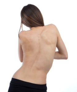 adult scoliosis treatment denver co