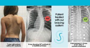 scoliosis brace scolibrace denver co